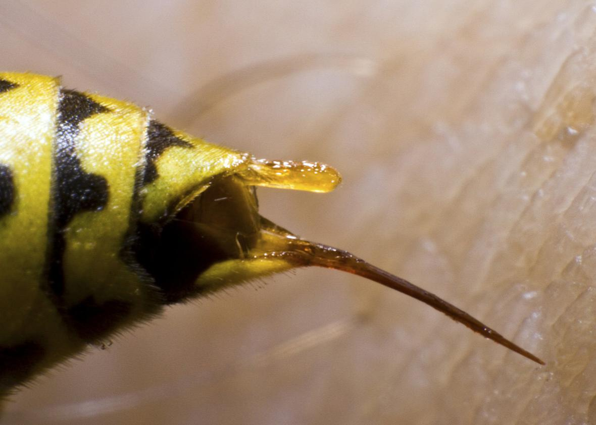 A Bee Stinger